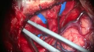 Beyin Tümörü Nasıl Çıkartılır? - Intrakranial tümör Ameliyatı - Meningiom