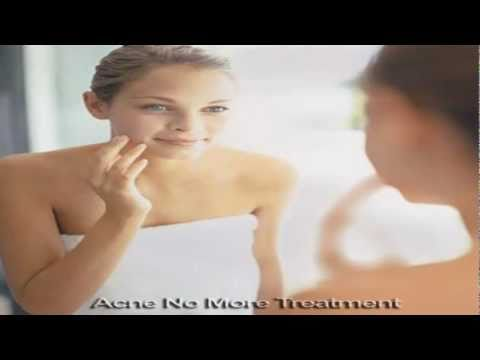 Beneficial Information on Acne Treatment Products