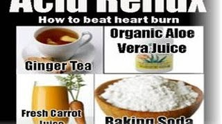 How to Cure Acid Reflux Fast Naturally - Treat Acidity (GRED) Permanently