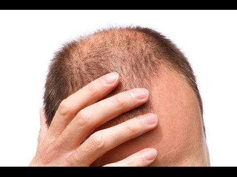 Как избавиться от облысения и седых волос
