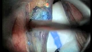 Laser vocal cord cancer surgery.
