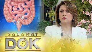 Salamat Dok: Causes and symptoms of endometriosis