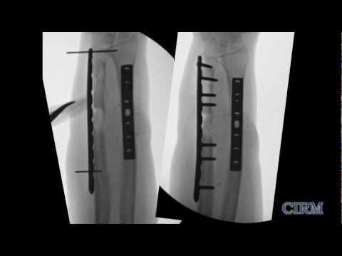 Healing Bones with Stem Cells at UC Davis - Mark Lee: CIRM Spotlight on Disease