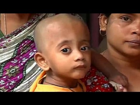 Republic of hunger: Malnutrition plagues in Maximum city