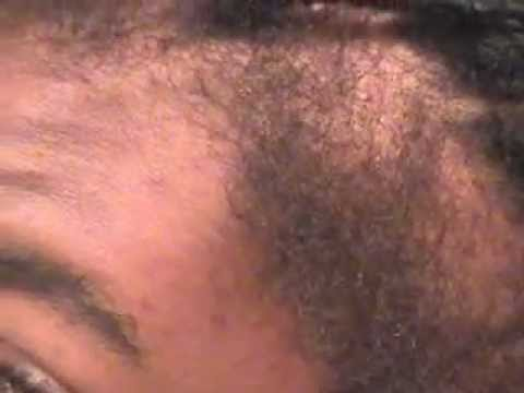 Hairline / Edges Growth Update ! August 2012