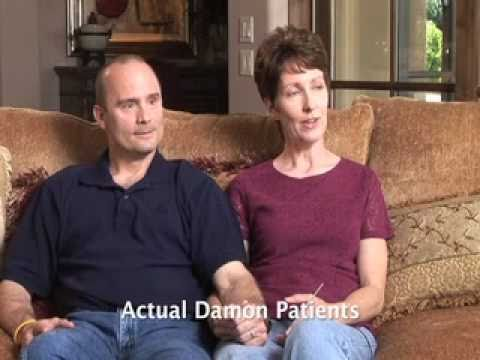 Damon Braces For The Whole Family