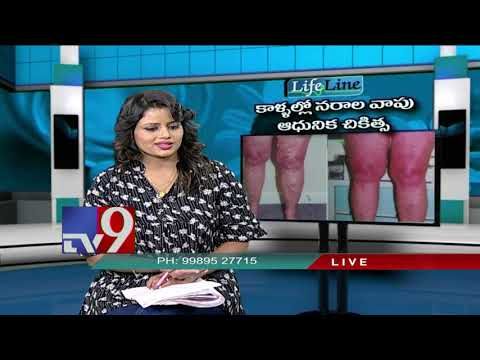 Varicose Veins || Advanced Treatment || LifeLine - TV9