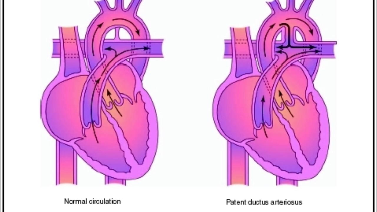 Ductus Arteriosus Botalli Ductus Arteriosus