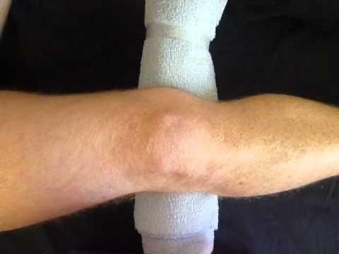 Knee Osteoarthritis Exercises - Inner Range Quads