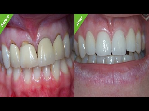 Post Root Canal Maintenance - Care World tv - Oral Health
