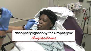 Emergency Nasopharyngoscopy for Angioedema Evaluation