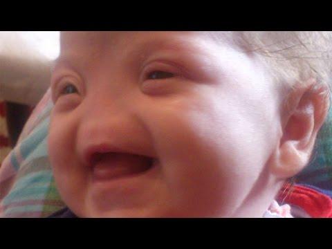 Tessa, la petite fille née sans nez !