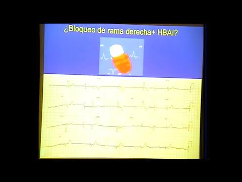 Dr. Pérez-Villacastín. Bloqueos de rama, hemibloqueos y tratamiento.