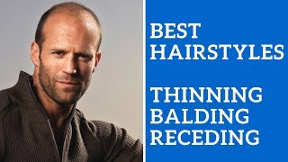 Best Men's Hairstyles for Thinning Hair, Balding Hair, or Receding Hair Line