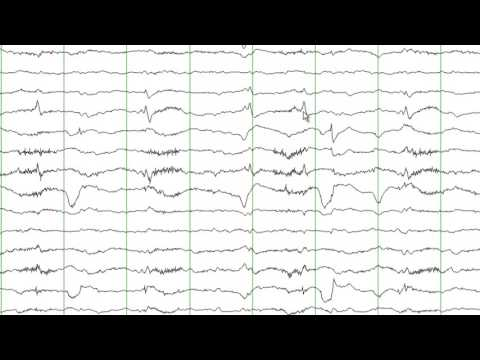 EEG Reading Rounds Occipital Lobe Seizures thumbnail