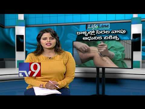 Awareness on Varicose Veins || Latest Treatment || LifeLine - TV9