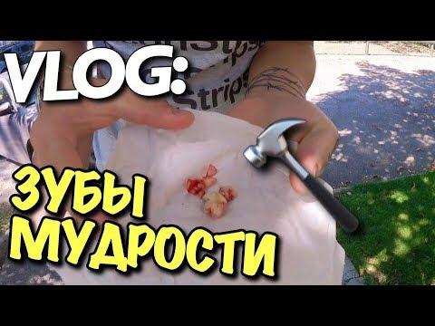 VLOG: ВЫРВАЛИ 4 ЗУБА МУДРОСТИ / Андрей Мартыненко