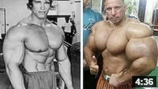 Synthol VS Steroid (ssamawi and arnold)