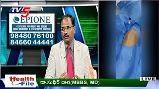 Knee Problems And Treatments | Epione Hospitals | Health File