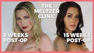 Trans Women React to Each Other's Boobs (Post-Op) The Meltzer Clinic   Casey Bla