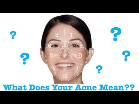 Face Mapping: Causes of Acne on Different Areas of the Face