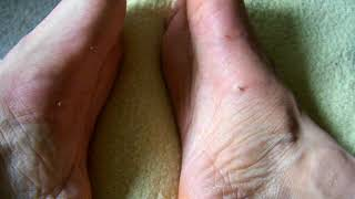 Arch stings in two spots for foot pain 1