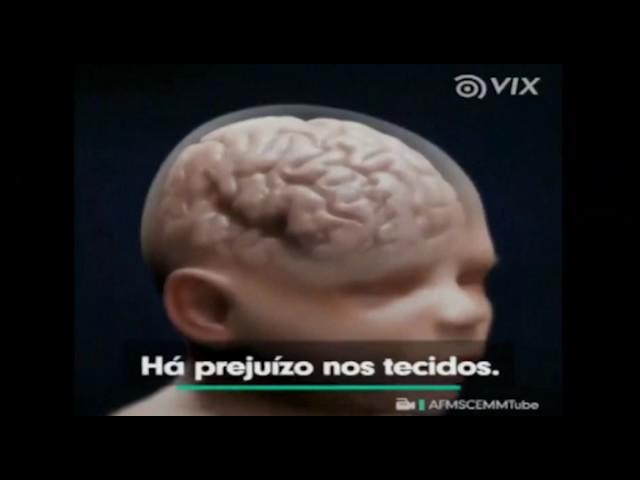 Curiosidades Papo de Graça: Síndrome do bebê sacudido.
