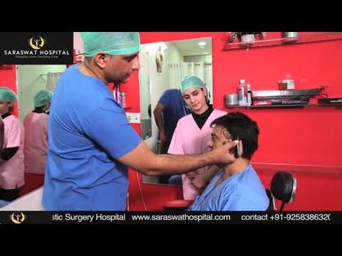 Celebrity Hair Transplant (Temporal Points) Master Raju at Saraswat Hospital by Dr Satya Saraswat