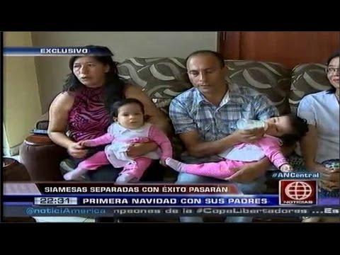 Siamesas separadas con exito pasaran su primera navidad con sus padres