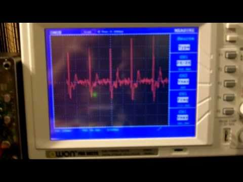 Arduino ECG  EKG Heart rate monitor circuit prototype