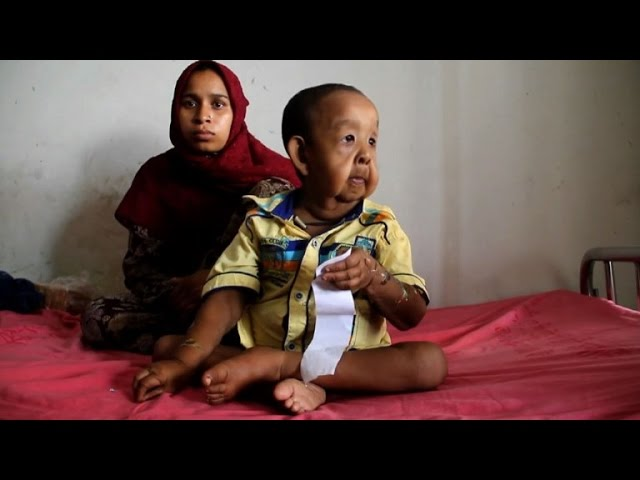 Bangladeshi boy with 'old man' illness baffles doctors