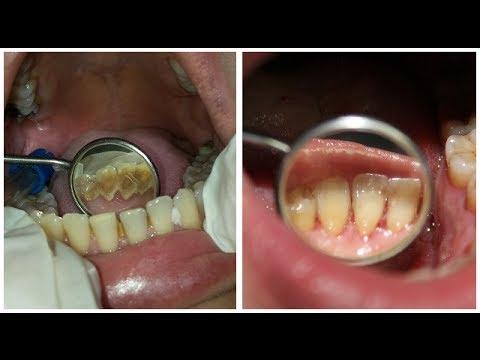 Extreme Dental Cleaning Just Smile Dental Hygiene