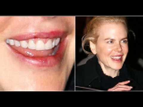 Las feas bocas de los famosos