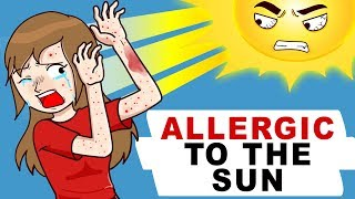 I Am Allergic To The Sun