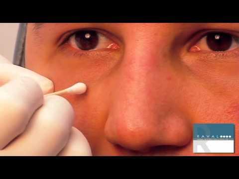 Restylane Injection with Jeffrey Raval