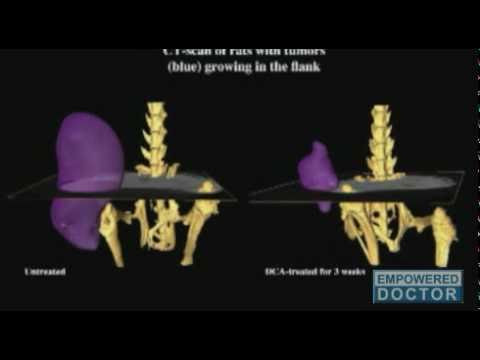 Nanoparticles Carrying Deadly Genes Destroy Cancer Cells.flv