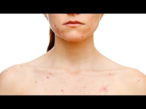Does Acne Laser Treatment Work? | Skin Care Guide