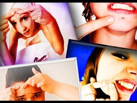 Understanding Acne