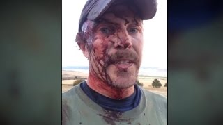 Man takes grizzly attack selfie
