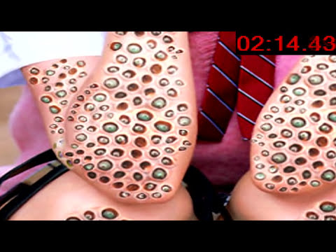 Do YOU Have Trypophobia?