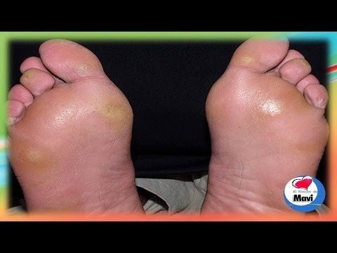 Remedios caseros para callos o callosidades y durezas en los pies