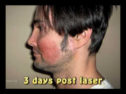 Laser Skin Resurfacing for Acne Scars