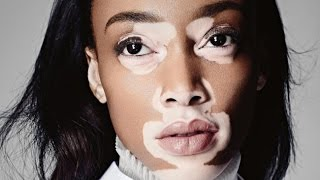 Beautiful People With Vitiligo