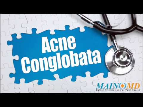 Acne Conglobata ¦ Treatment and Symptoms