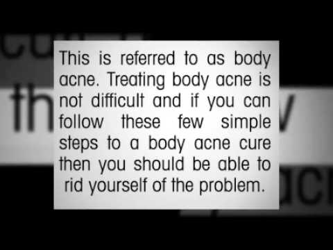A Simple Home Body Acne Cure