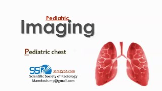 Imaging of pediatric chest III ( 2014 ) - Dr Mamdouh Mahfouz