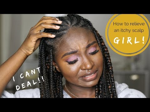 Easy Fix: How To Relieve An Itchy Scalp  | I Made Myself Bleed smh