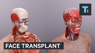 Here's how doctors pulled off the most complicated face transplant ever