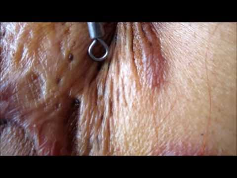 Black Heads On Breasts??