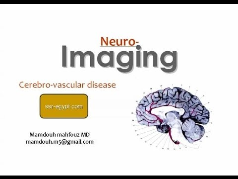 Imaging of Cerebro-vascular Diseases -DRE 2 - Dr Mamdouh Mah